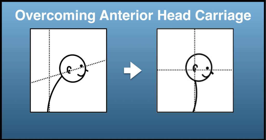 Overcoming Anterior Head Carriage Affliction, By Dr. Tom Groover