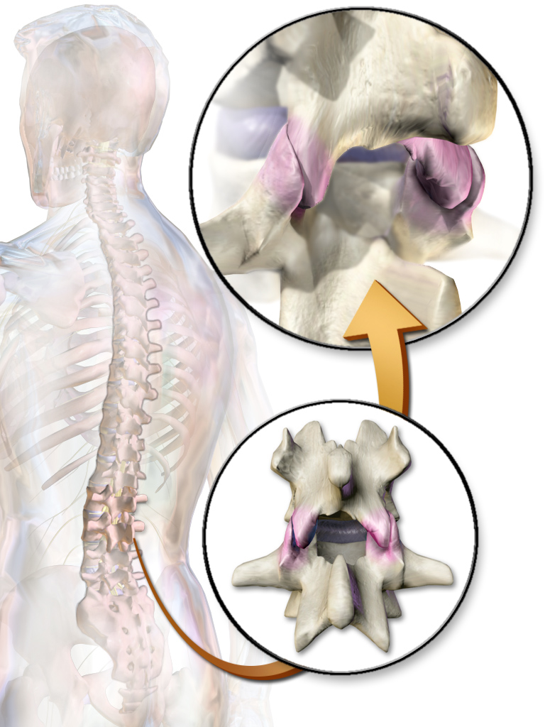 Low Back Pain: Understanding, Correcting and Managing Healthy Lumbar Curvature and Pelvic Tilt