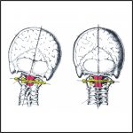 Initial Upper Cervical Correction, Stabilization and Reevaluation